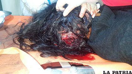 La herida en la cabeza de la víctima