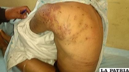 El cuerpo de la persona atacada tiene muchas lesiones