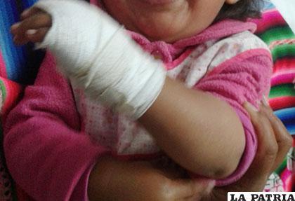 La niña de 2 años que fue agredida