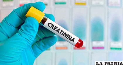 La prueba de Creatinina es gratuita en centros de salud públicos /mdsaude.com