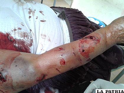 Víctima recibió heridas profundas en las extremidades superiores