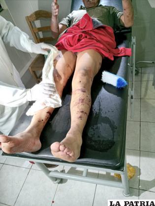 La víctima recibiendo atención médica /LA PATRIA
