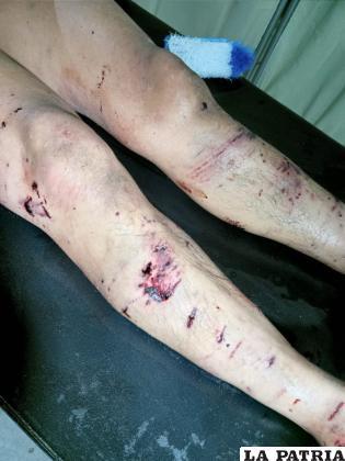 El sujeto tiene 14 días de impedimento médico legal /LA PATRIA