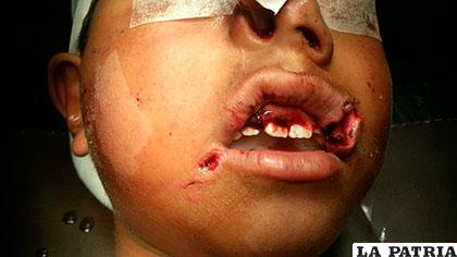 Niño tuvo que recibir más de 25 puntadas en el rostro por su curación