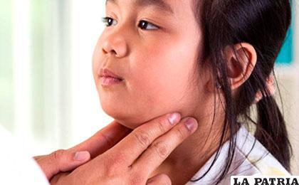 En la población estudiantil se presentó el incremento de casos de paperas /www.natursan.net