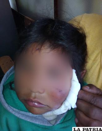 Niña presenta heridas en la cara provocadas por un can /LA PATRIA