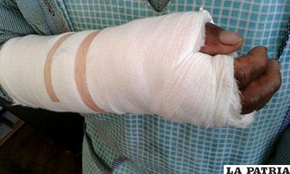 Personas atacadas por perros después de la cirugía reconstructiva /SEDES