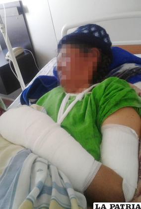 Mujer presenta serias heridas en el brazo derecho /LA PATRIA