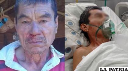 La víctima falleció por complicaciones en su salud / LOS TIEMPOS