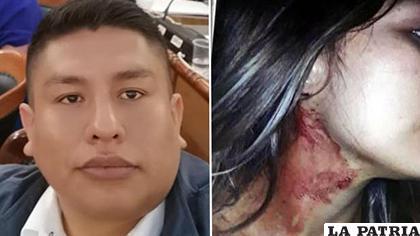 El diputado negó las acusaciones de violencia / Erbol
